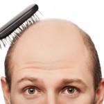 Saç Dökülmesine Karşı Önlemler